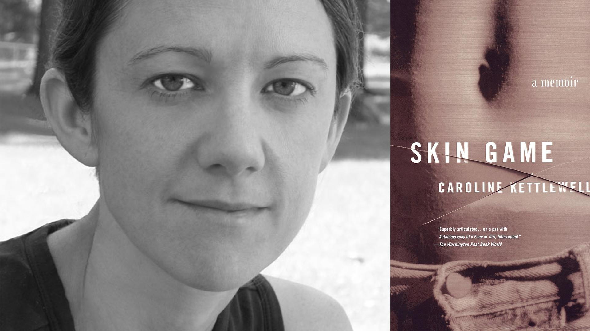 Caroline Kettlewell Skin Game
